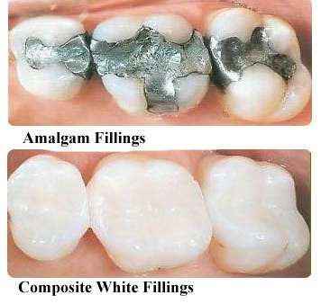 http://www.michaelabentzdds.com/wp-content/uploads/2016/02/white-fillings.jpg